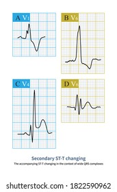 The wide QRS complex changes the order of ventricular depolarization and secondary changes in the order of repolarization.