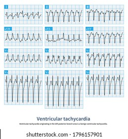 Wide QRS complex tachycardia. The QRS complex was in the form of complete right bundle branch block combined with left anterior branch block.