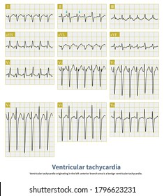 Wide QRS complex tachycardia. The QRS complex was in the form of complete right bundle branch block combined with left posterior branch block.