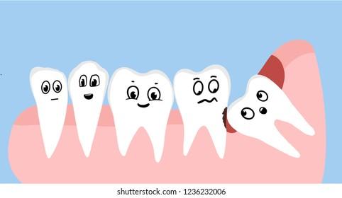 Wisdom tooth asymmetric inflammation operation Illustration