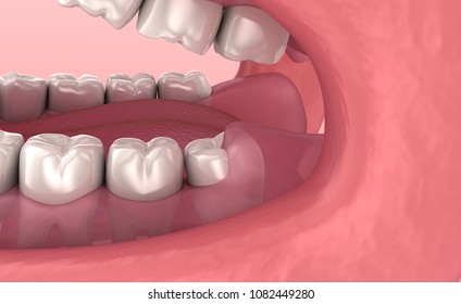 Wisdom tooth problem. Medically accurate tooth 3D animation