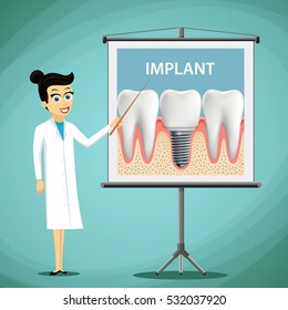 Woman dentist showing a poster with tooth implant. Dental treatment. Stock illustration.