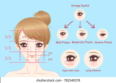 woman with droopy eyelids on the blue background