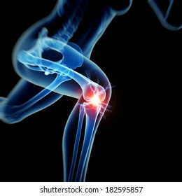 woman having acute pain in the knee
