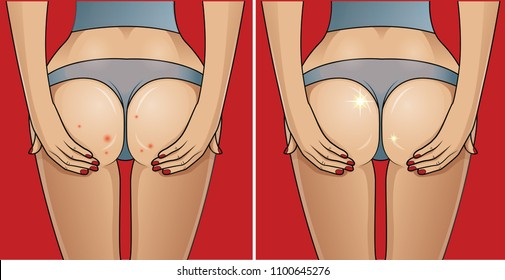 Woman's buttocks with problematic skin. Before - after concept.