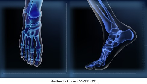 X ray of bones the of foot. Medial and frontal view