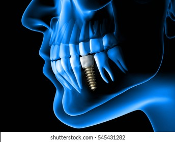 X ray view of denture with implant. Xray view.3d rendering