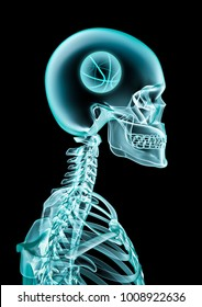 X-ray basketball fan / 3D illustration of skeleton x-ray showing basketball inside head