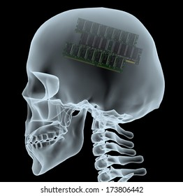 X-ray of a head with electronic ram instead of the brain, 3d illustration