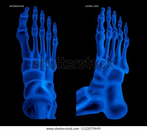 Xray Human Foot Bone Anterior View Stock Illustration 1122079649