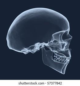 xray human head skull