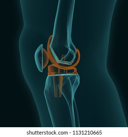 X-ray of a human knee in the lateral projection with knee replacement isolated on a black background