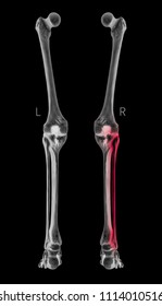 X-ray of Human Leg bone left and right- Posterior view red highlights in Fibula bone pain area-3D Medical and Biomedical illustration-Healthcare-Human Anatomy and Medical Concept-Black and white color