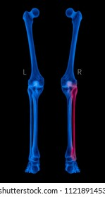 X-ray of Human Leg bone left and right- Posterior view red highlights in Fibula bone pain area- 3D Medical and Biomedical illustration- Healthcare- Human Anatomy and Medical Concept- Blue tone color