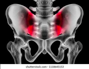 X-ray of human pelvis Anterior view red highlight on sacroiliac joint pain area- 3D medical and Biomedical illustration- Healthcare- Human Anatomy and Medical Concept -Isolated on Black background