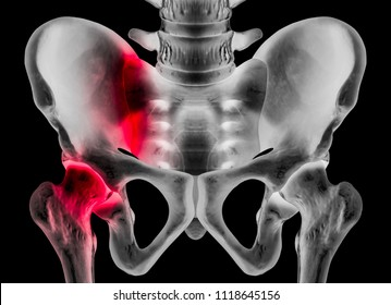 X-ray of human pelvis anterior view red highlight in sacroiliac joint and hip socket in left side pain area- 3D medical and Biomedical illustration- Human Anatomy and Medical Concept- Black background