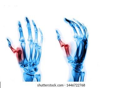 X-ray image of hand show Thumb fracture / dislocated finger. Medical health care concepts.