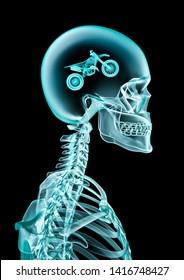 X-ray motocross fan / 3D illustration of human skeleton x-ray showing dirt bike inside head