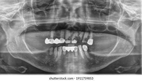 X-rays of teeth problem of elderly old woman