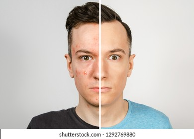 2 guys before-after: left guy with acne, red spots, problem skin, right guy with healthy skin. Acne treatment concept