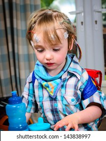 A 2 year old boy with 24hr EEG electrodes attached