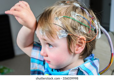 A 2 year old boy with 24hr EEG electrodes attached to his head
