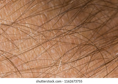 A 2x macro close up of the hair and skin of a man's forearm