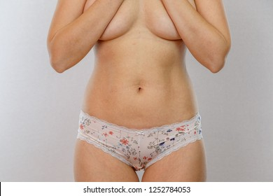 A 30 year old nude Caucasian woman reveals flaws in her body against a light isolated background. Concept for medicine and cosmetology