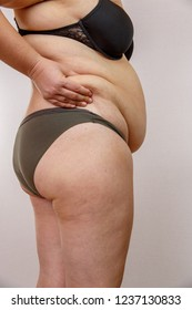 A 38-year-old Caucasian woman with overweight and hormonal malfunction shows her body with cellulite and fat. On a light isolated background. Concept for medicine and cosmetology.