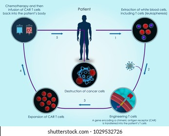 3d illustration of the basic steps of CAR T-cell therapy against cancer