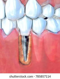 3d illustration of a dental implant in the mandible