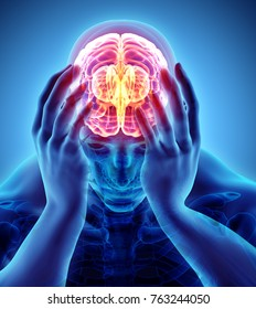 3d illustration of headache human, x-ray medical concept.