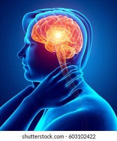 3d Illustration of Male Feeling Headache