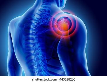 37.714 hình chất lượng cao về triệu chứng đau vai gáy mà bạn không thể bỏ qua