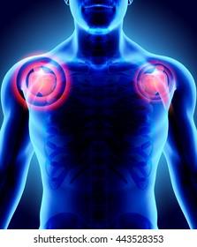 3D Illustration of shoulder painful, medical concept.