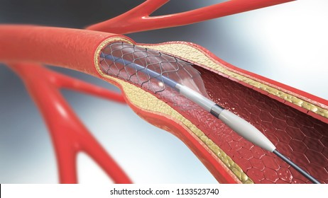 3d illustration of stent implantation for supporting blood circulation into blood vessels