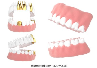 3D jaw with metal implant isolated white