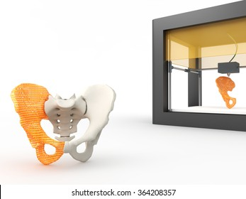 3d printed hip bone