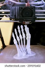 3D Printing Model of Human Foot Bones