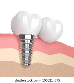 3d render of implant with dental cantilever bridge in gums
