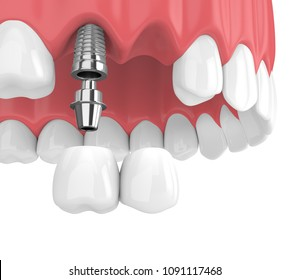3d render of implants with dental cantilever bridge in upper jaw  isolated over white background
