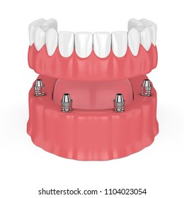 3d render of removable full implant denture isolated over white background