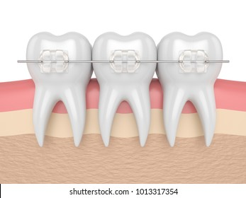 3d render of teeth with ceramic clear braces in gums