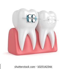 3d render of teeth with ceramic and metal braces in gums isolated over white background. The concept of comparison of two types of orthodontic braces.