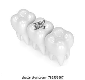 3d render of teeth with dental amalgam filling over white background