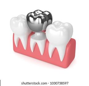 3d render of teeth with dental crown amalgam filling in gums over white background