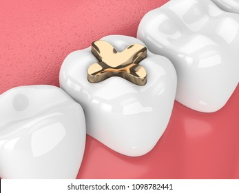 3d render of teeth with dental inlay golden filling over white background