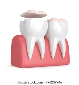 3d render of teeth with dental onlay over white background