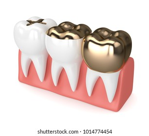 3d render of teeth with different types of dental gold filling in gums over white background