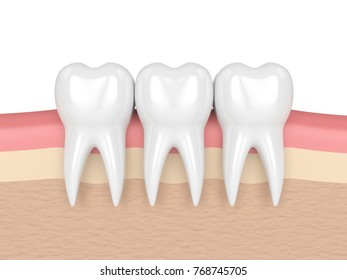 3d render of teeth in gums over white background